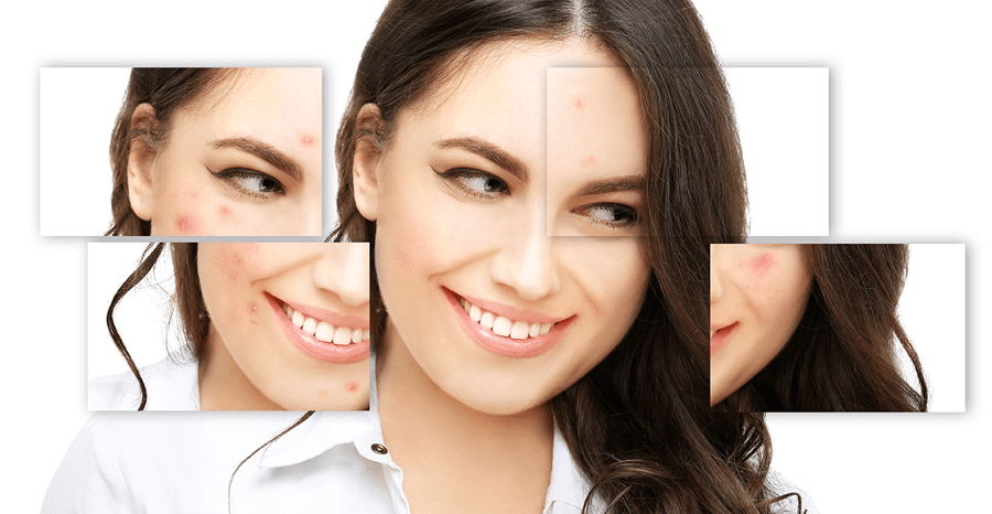 Acne Pasco WA | Acne Treatment Pasco WA | Atomic Dermatology