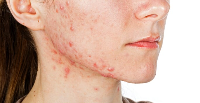 Why You Should Consider Cystic Acne Treatment Atomic Dermatology